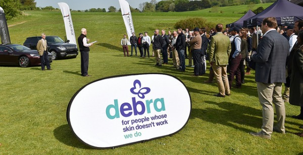 The DEBRA event was aided by excellent weather and great organization by all the staff at RBSS